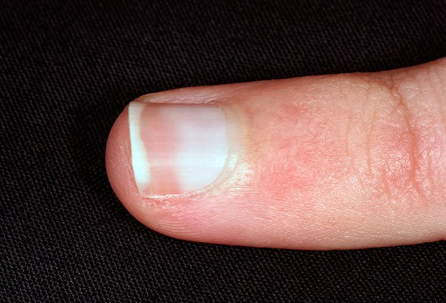 Pale nails can indicate more serious health problems in some individuals.