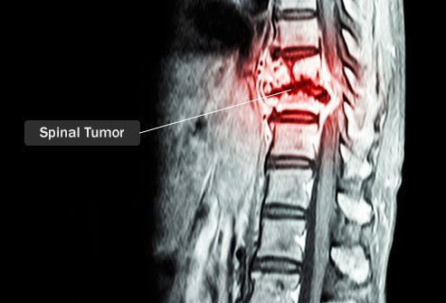 Every year, about 10,000 Americans develop spinal tumors
