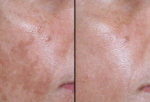 Before and after photos of nonablative laser treatment for melasma.