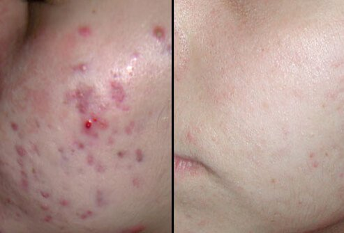 Diode laser therapy for acne may require several treatments.
