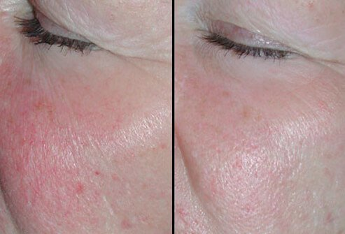 Before and after photos of IPL treatment.