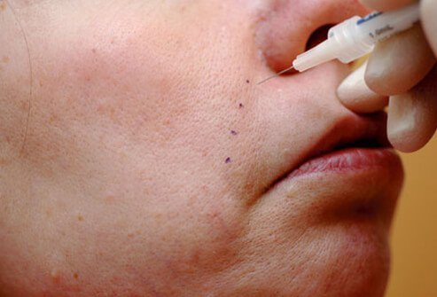 A woman has cosmetic fillers injected into facial creases.