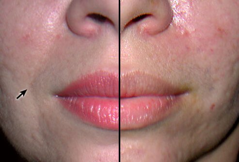 Many, but not all, fillers disappear over a period of months, so it is necessary to reinject them to retain the desired appearance.