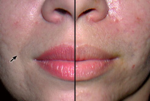 Before and after photos of cosmetic filler treatments.