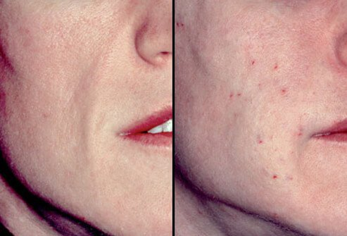 The anatomy of the aging face is now better understood than in the past.