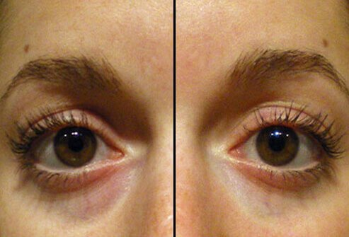 Physicians may use fillers in the hollow area around the eye socket to minimize dark circles and bags under the eyes.