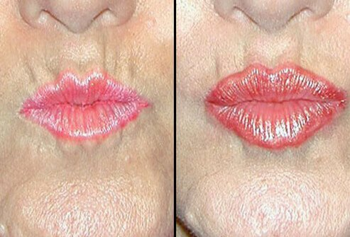 Before and after photos of cosmetic filler for the lips.