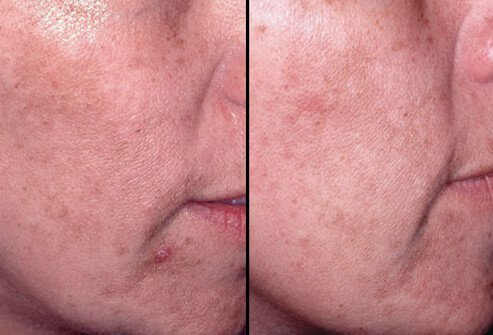 Mild peels may be repeated every few weeks for the desired effect.