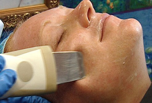 Microdermabrasion is a procedure whereby silicon crystals (grains of sand) are propelled by air onto the skin surface, producing a small amount of inflammation.