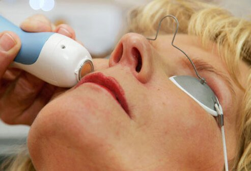 Radio waves can improve the appearance of sun-damaged skin.