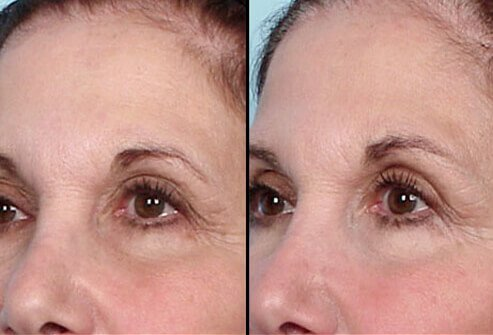 Droopiness of the eyelids is one condition often treated by Thermage.