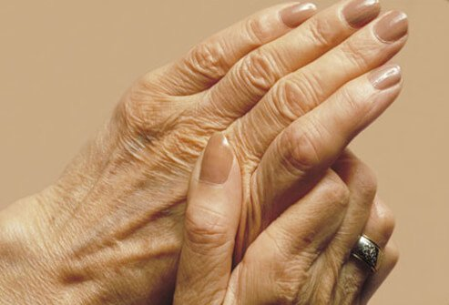 A woman rubbing her hands.