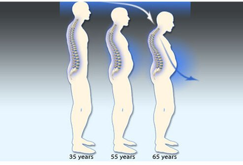 This illustration shows gradual progression of bone density deterioration after the age of 35.