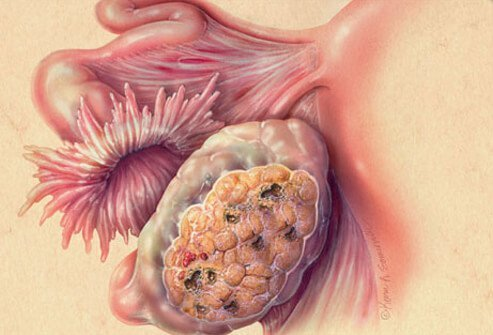 Illustration of ovarian cancer.