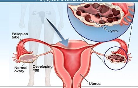 Ovarian cysts can be classified as functional or complex, as is the case in polycystic ovarian syndrome, depicted here.