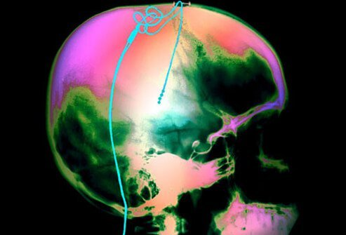 A color X-Ray showing electrodes in the thalamus.