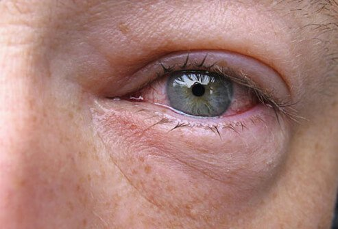 Increased production of tears (watery eyes) is common in viral and allergic pink eye.