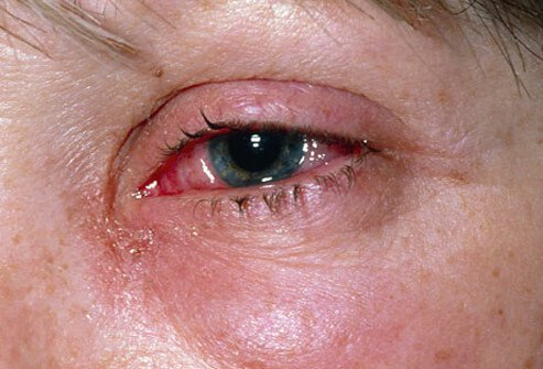 Eye irritation caused by viral conjunctivitis.
