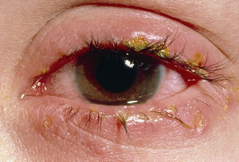 Crusts on a swollen eyelid from a viral infection.