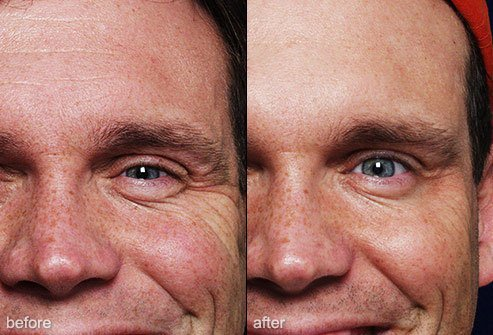 Botox is a common procedure to reduce the look of lines and wrinkles.