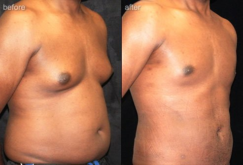Liposuction removes unwanted fat to sculpt areas of the body.