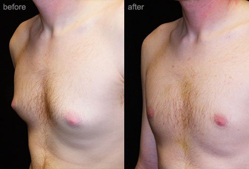 Breast reduction may be performed in men using liposuction or surgery.