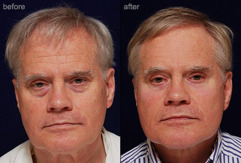Facelifts tighten sagging skin and reduce the appearance of deep skin folds.
