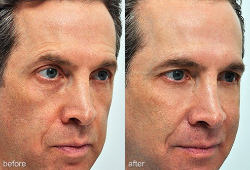 Fillers can be used to give the face a more youthful appearance.