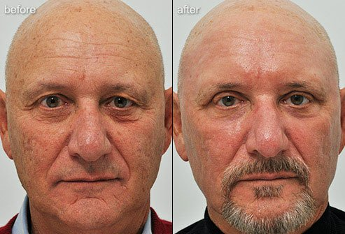 Laser skin resurfacing removes damaged layers of skin so that healthier skin can emerge.