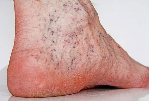 A doctor can use laser therapy to remove spider veins.