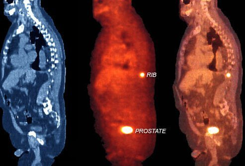 Photo of stages of prostate cancer.