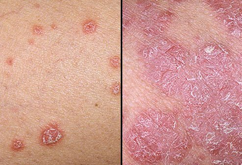 Although psoriatic plaques can be limited to only a few small areas, the condition can involve widespread areas of skin anywhere on the body.