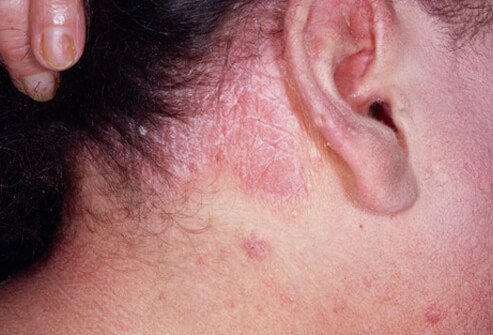Psoriasis commonly occurs on the scalp, which may cause fine, scaly skin or heavily crusted plaque areas.