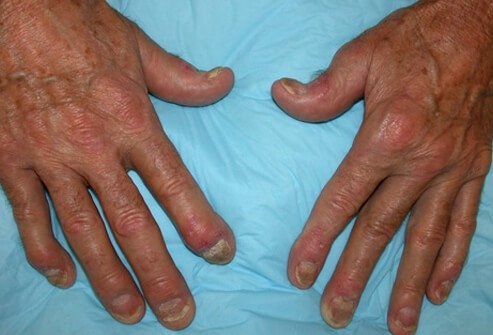 Picture of Psoriatic Arthritis