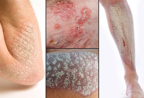 Psoriasis usually appears as red or pink plaques of raised, thick, scaly skin.