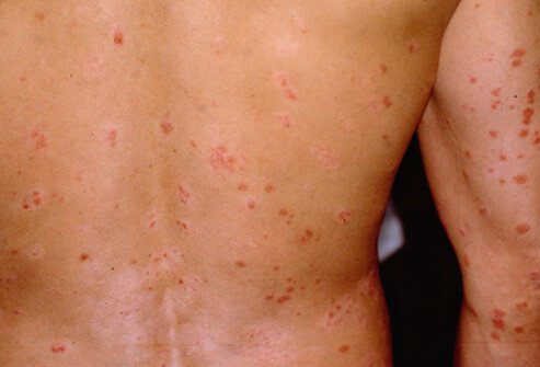 A male patient suffering from guttate psoriasis.