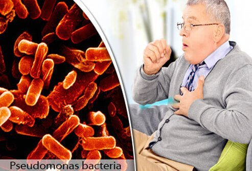 Pseudomonas bacteria in a lung and a male patient with bronchitis.
