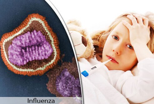 A colorized electron microscope view of the influenza virus and a girl with the flu in bed.