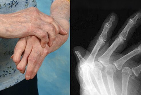 Joint X-rays can also be helpful in monitoring the progression of rheumatoid disease and joint damage over time.