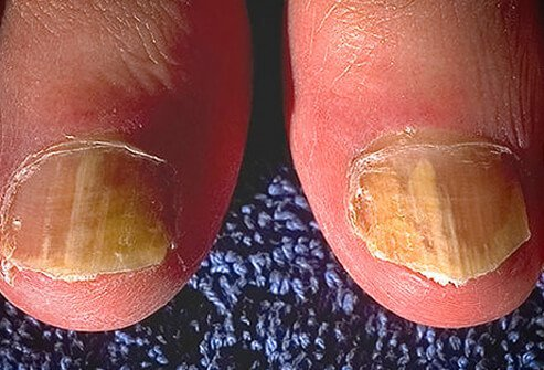 Tinea unguium is usually caused by one of two fungi.