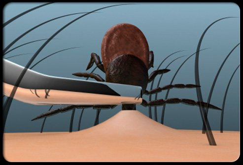 To remove a tick, grasp the tick as close to the skin surface as possible and pull upward with steady, even pressure.