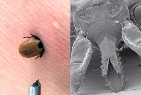 Rocky Mountain spotted fever is transmitted by the bite of an infected tick.