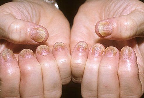 Many patients with psoriasis have abnormal nails.