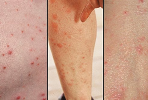 Scabies can often resemble other skin conditions