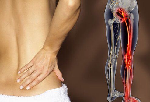 Photo of a person with lower back pain due to sciatica.