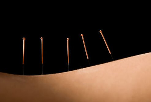 Photo of acupuncture needles.