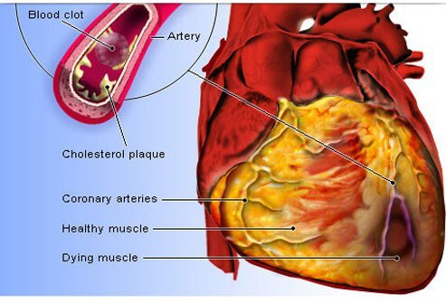 An illustration shows blockage of the coronary arteries by plaque which may cause a heart attack.