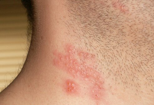 A zoster rash appears on the neck of a patient.
