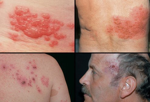 Herpes zoster results in a painful rash that may appear in one of several areas of the body.
