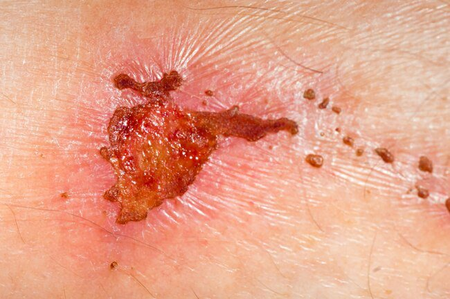 Insufficient protein intake may result in slower wound healing.